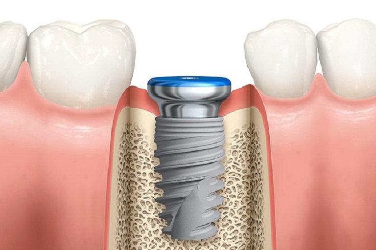 Implantología en Zaragoza